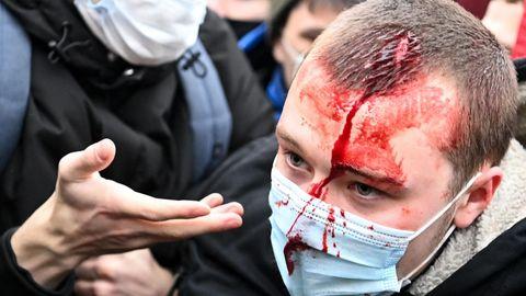 Einem jungen Mann mit kurzen, dunkelblonden Haaren läuft aus einer Platzwunde auf dem Kopf Blut über Gesicht und Mundschutz