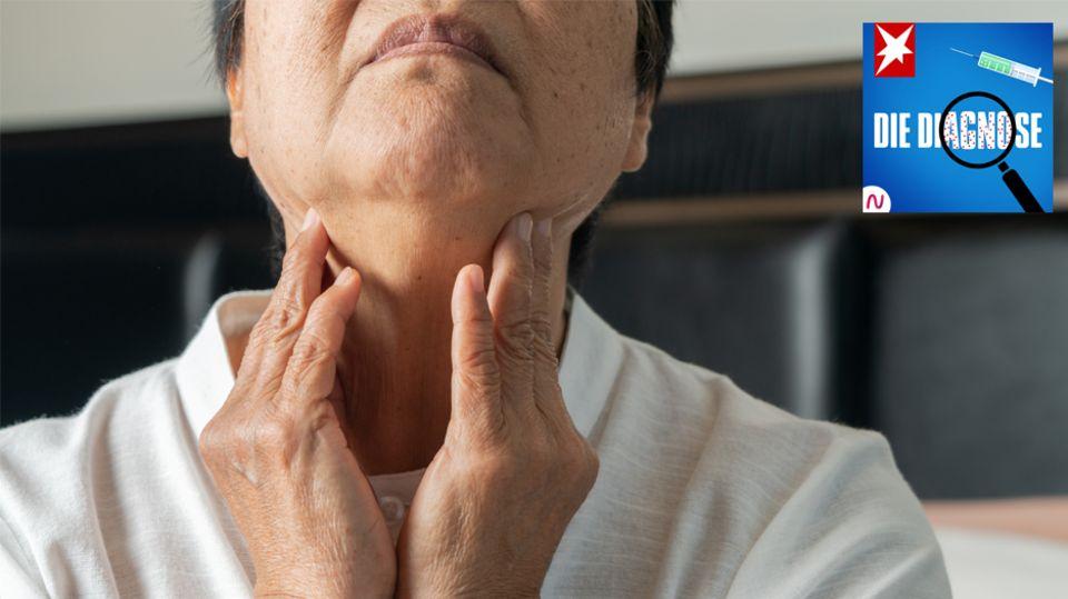 Diagnose-Podcast: Eine Frau leidet unter Schluckproblemen – schuld ist ihre Muskelkraft