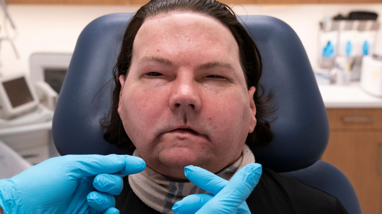 Aufnahme des Transplantierten Gesichts von Joe DiMeo