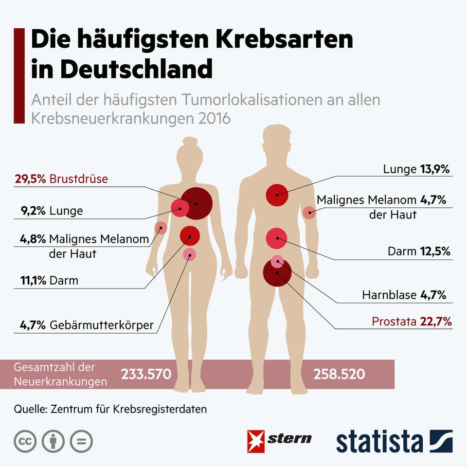 Krankheit: Das sind die häufigsten Krebsarten in Deutschland