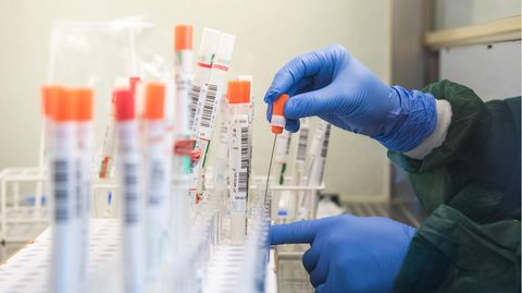 Eine Labor-Mitarbeiterin überführt einen trockenen Abstrich eines Tests auf das Sars-CoV-2-Virus in eine Flüssigkeit