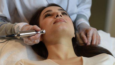 Frau lässt sich mit Dermapen zum Microneedling behandeln