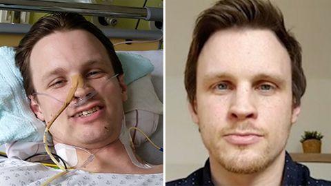 """Covid-19: """"Konnte die Zahnbürste nicht mehr halten"""" – 35-Jähriger kämpft sich sechs Monate lang ins Leben zurück"""