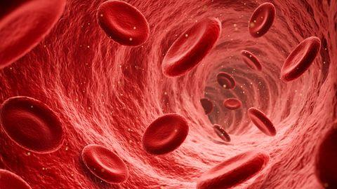 Hirnvenenthrombosen