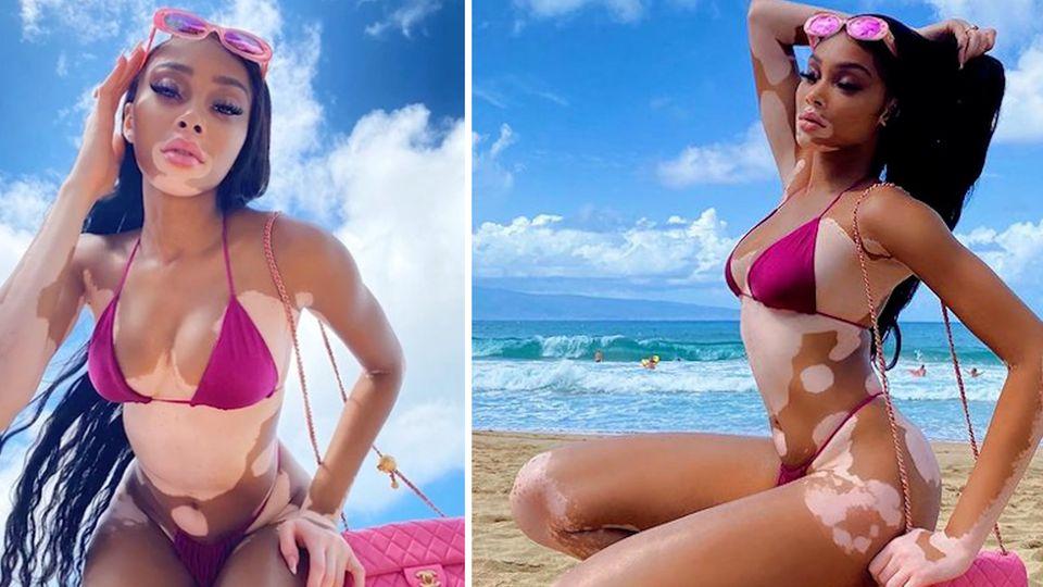 Sehnsucht nach Urlaub garantiert: Winnie Harlow zeigt ihre Kurven – im Bikini