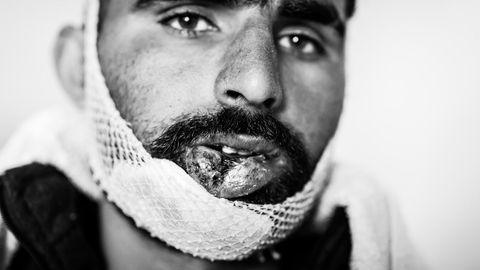 """""""Berichte über Misshandlungen und brutale Push-Backs durch Beamte des EU-Staats Kroatien gab es schon vor meiner Recherche.Es war bekannt, dass dort Verbrechen passieren. Aber in der deutschsprachigen Presse war kaum etwas darüber zu lesen. Das hat mich geärgert. Darum habe ich mich entschieden, diese Verbrechen mit der Kamera zu dokumentieren. In den Lagern habe ich dann gezielt nach Menschen gesucht, die an der Grenze misshandelt worden waren. Ich wollte Bilder machen, die als Beweise dienen können.  Der Mann auf dem Bild heißt Mohammed Fiaz, er ist 24 Jahre alt und stammt aus Pakistan. Fünf Tage bevor ich ihn fotografierte und seine Geschichte protokollierte, hatten kroatische Polizisten ihm den Kiefer gebrochen und mehrere Zähne ausgeschlagen. Dann hatten sie ihm Jacke und Schuhe abgenommen. Sieben Kilometer musste er barfuß zurücklaufen nach Bosnien hinein. Als ich ihn traf konnte Fiaz kaum sprechen. Andere Flüchtlinge hatten mich zu ihm gebracht. Während ich sein Portrait aufnahm, umringten sie uns und sagten: """"Du musst das fotografieren. Wir wollen, dass publik wird, was hier passiert.""""  Ich bin kein routinierter Kriegs- und Krisenreporter. Wenn ich so jemandem in die Augen sehe, fehlen mir einfach die Worte. Fiaz war nicht der einzige verletzte Flüchtling. In demselben Lager traf ich auch noch ein Mann aus Bangladesch mit einer Platzwunde am Kopf. Andere waren so verprügelt worden, dass es weniger offensichtliche Spuren hinterließ.  Ich weiß: Eine Fotoreportage wird diese Verbrechen nicht beenden. Auch einige EU-Parlamentarier setzen sich seit Jahren für dieses Thema ein, ohne dass sich etwas geändert hätte. Das ist bitter. Aber ich hoffe, dass meine Berichterstattung dazu beiträgt, dass das irgendwann ein Ende hat. Und dass die Verbrechen geahndet werden."""""""