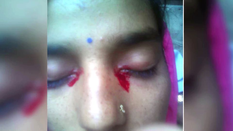 Frau weint Blut während Menstruation