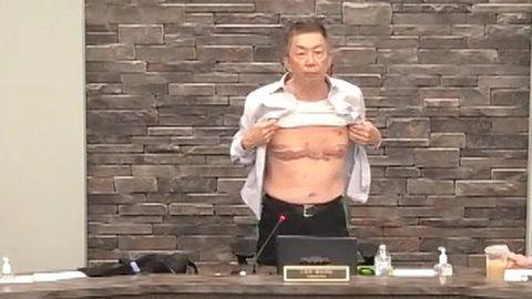 Lee Wong hebt sein Hemd und zeigt seine Narben