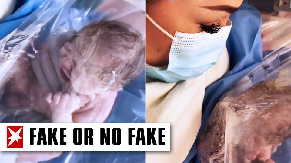 Faktencheck: Baby nach Geburt in Plastikfolie – als Corona-Schutzmaßnahme?