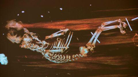 Das Röntgenbild zeigt den Fötus in dem etwa 342 Jahre alten Sarg des Bischofs Peder Winstrup