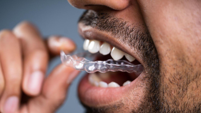 Auf Zahnspangen und Zahnschienen sammeln sich Ablagerungen