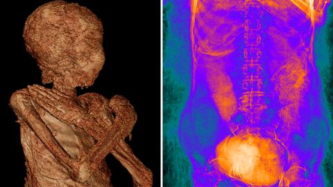 Mumie von angeblich männlichem Hohepriester ist eine Frau– und sie hatte ein Baby im Bauch