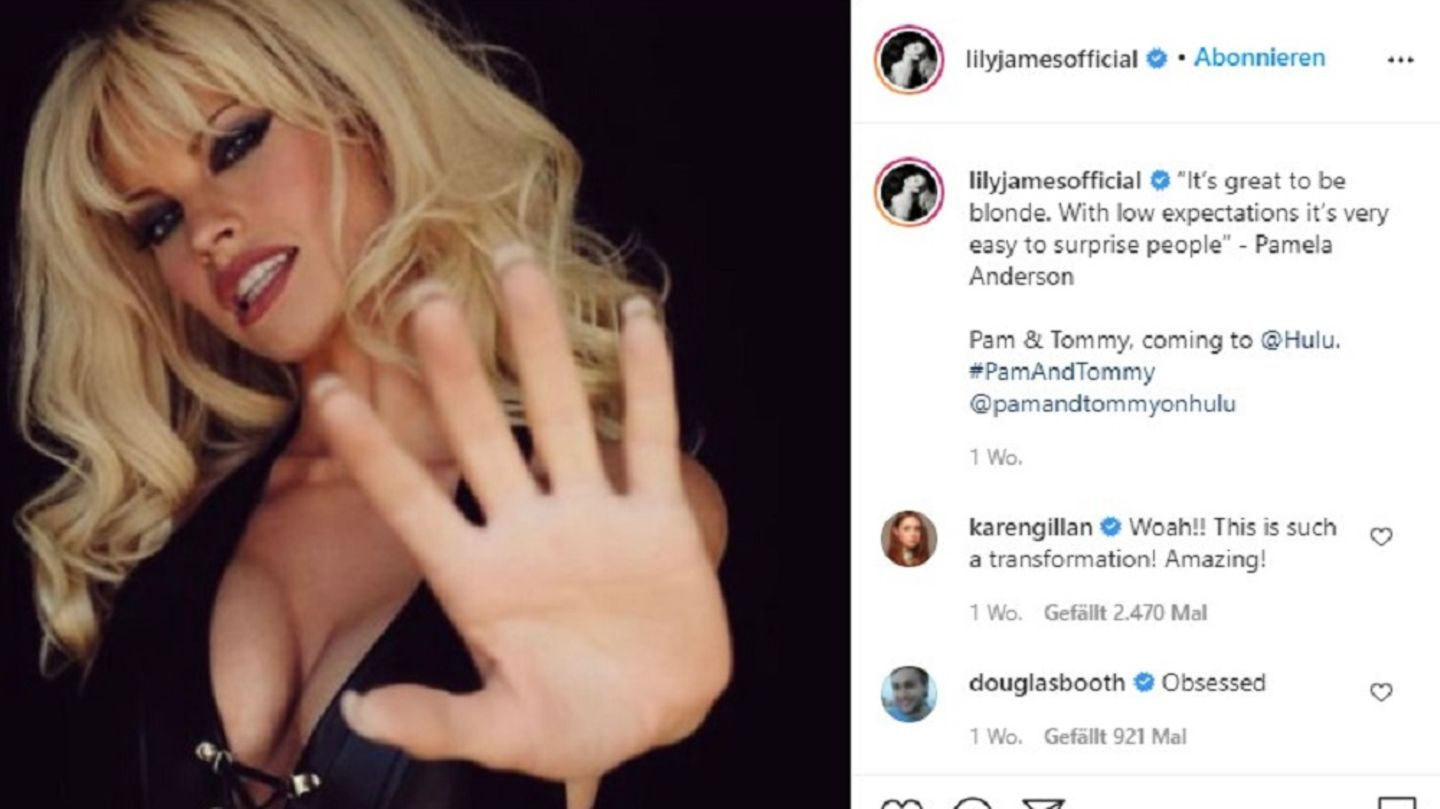 Lily James als Pam Anderson