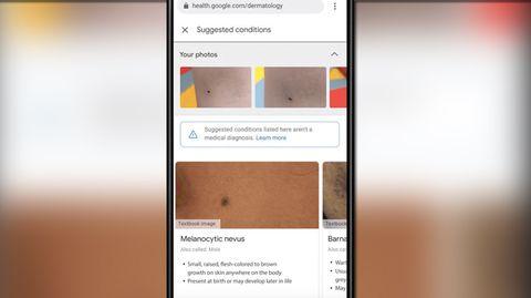 """""""Derm Assist"""": Google will mit KI Hautkrankheiten erkennen"""