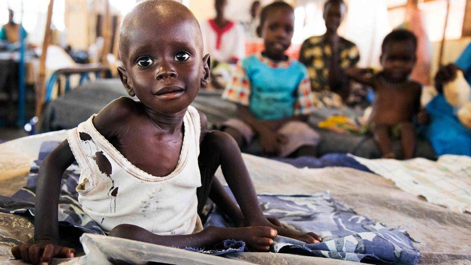 Ein Kind in Afrika leidet an schwerer Unterernährung