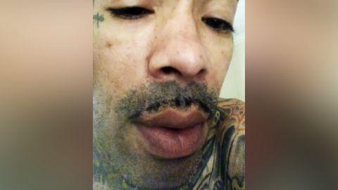 US-Rapper GUNPLAY zeigt Langzeitfolgen seines Kokainkonsums