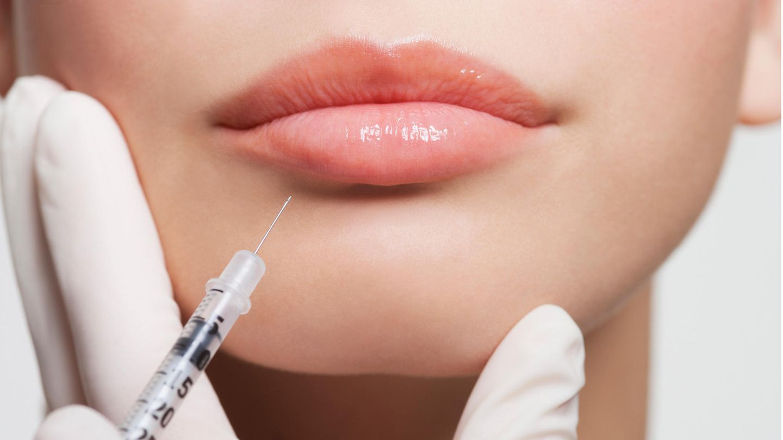 Einer Frau wird ein Medikament in die Lippe gespritzt