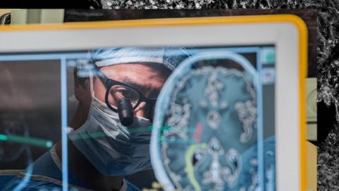 Neurologe Edward Chang bei einer Hirn-OP
