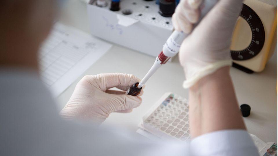 Corona-Antikörpertest