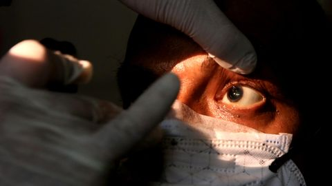 Mukormykose Schwarzer Pilz: Ein Patient wird untersucht