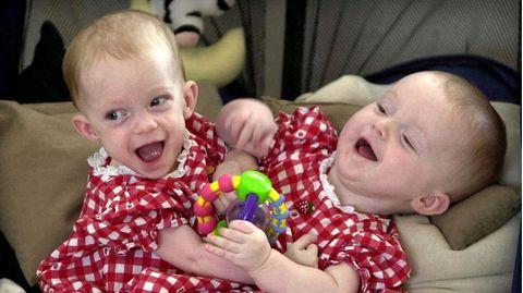 USA: Siamesische Schwester bekommt ihr Baby genau dort, wo sie vom Zwilling getrennt wurde.