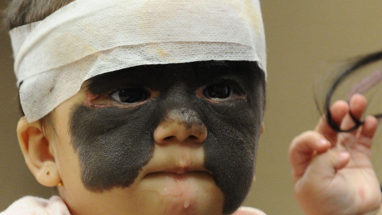 Luna Fenner nach einer Operation.