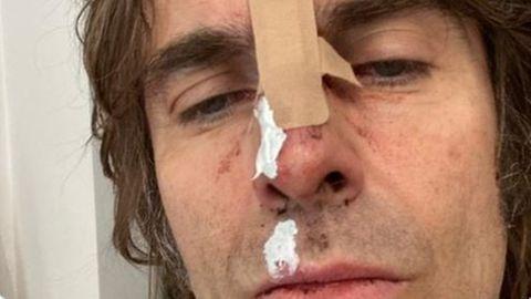 Liam Gallagher postet Selfie nach Sturz aus Helikopter