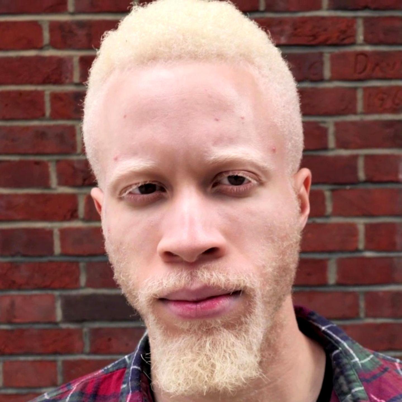 Albinismus Weltweit größte Albino Familie besteht aus 20 Briten