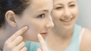 Jugendliche sind besonders häufig von Hautunreinheiten betroffen