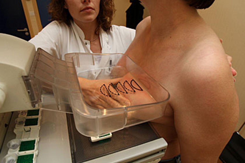 Nutzt das Mammographie-Screening? Dänische Wissenschaftler bezweifeln dies