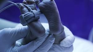 Kurz vor Weihnachten war Robyn Benson ins Koma gefallen. Ihr Sohn kam in der 28. Woche zur Welt. (Symbolfoto)