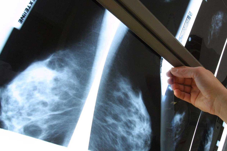 Die Mammografie ist das wichtigste bildgebende Verfahren zur Früherkennung kleiner Brusttumore.