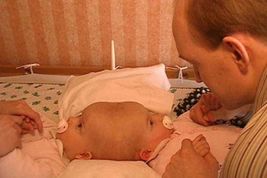 Bei ihrer Geburt war Lea mit ihrer Schwester Tabea am Kopf zusammen gewachsen. Die siamesischen Zwillingsmädchen kamen im August 2003 zur Welt. Auf diesem Foto sind die Mädchen etwa acht Monate alt, nachdem die Eltern sich entschieden hatten, Lea und Tabea in einer komplizierten Operation in den USA voneinander trennen zu lassen.