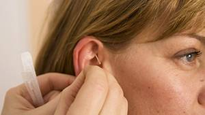 """Zu den teuren Extra-Leistungen zählt zum Beispiel Akupunktur: Sie wird bei Kopfschmerzen als """"tendenziell positiv"""" eingeschätzt"""
