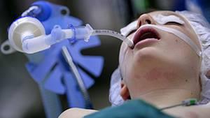 Innerhalb weniger Stunden kann eine Sepsis lebenswichtige Organe schädigen