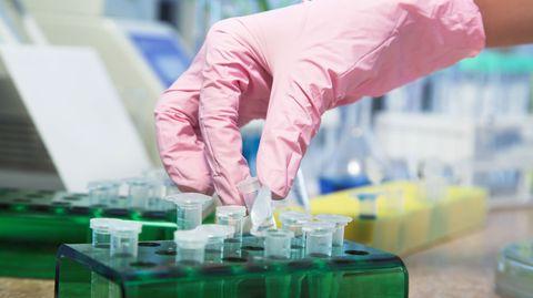 Risikopatienten sollen künftig bei Verdacht auf Schweinegrippe per DNA-Test überprüft werden