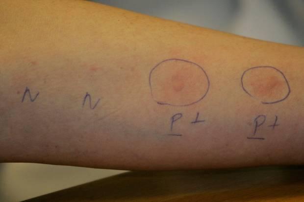 Beim Pricktest sticht der Arzt die Allergenen oberflächlich in die Haut des Unterarms