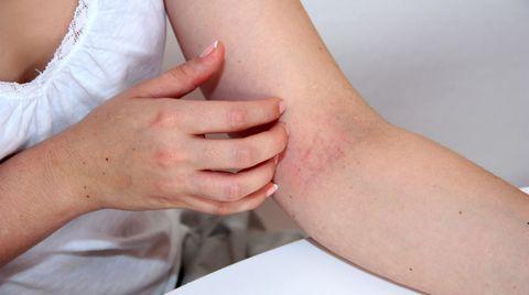 Bei Neurodermitis helfen Salben mit Tacrolimus