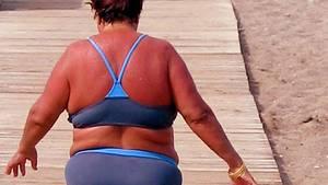 Nicht nur kosmetisches Problem: Starker Sonnenbrand kann sogar Fieber auslösen