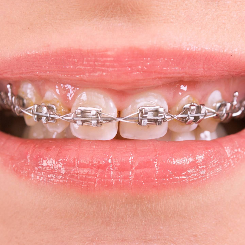 Zähne nachwachsen bleibende können Die dritten