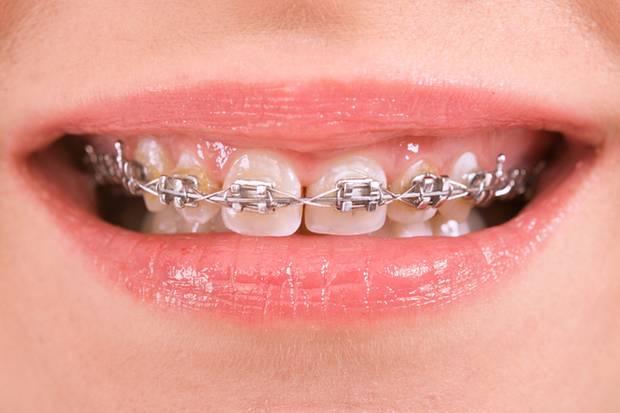70 Prozent aller Kinder und Jugendlichen in Deutschland tragen eine Zahnspange