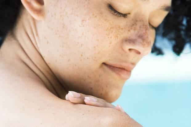 Hauttypen Die Schönen Und Die Fettigen Sternde
