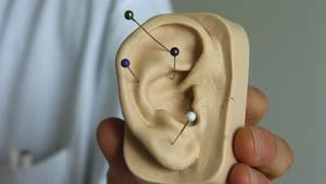Akupunktur hilft gegen Zahnschmerzen. Das ist wissenschaftlich belegt