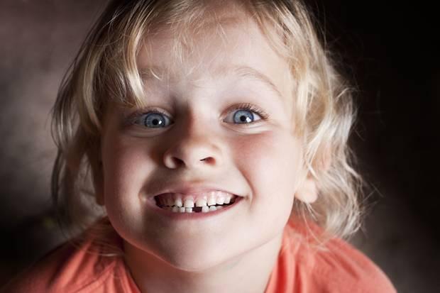Beim wilden Toben kann es schon mal passieren, dass ein Zahn herausgeschlagen wird
