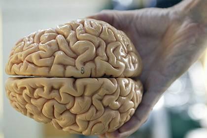 """Modell eines menschlichen Gehirns: Die Originale gehören nicht zu den """"persönlichen Dingen"""""""