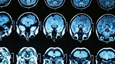 Um Spezialfälle zu lösen, hilft dem Arzt ein genauer Blick in den Schädel