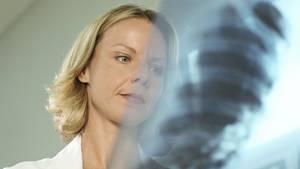 Fachärzte erkennen anhand von Röntgenbildern, ob auch die Lunge in Mitleidenschaft gezogen ist