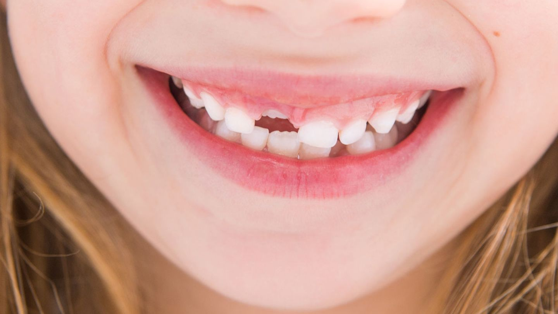 Abgebrochen zahn halb Patientenfrage: 5