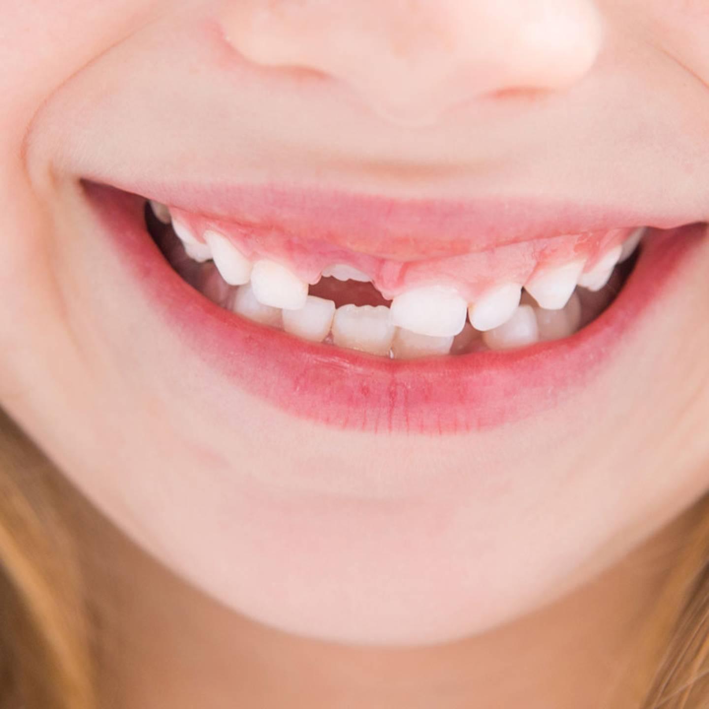 Zähne was tun schwarze Braune Flecken