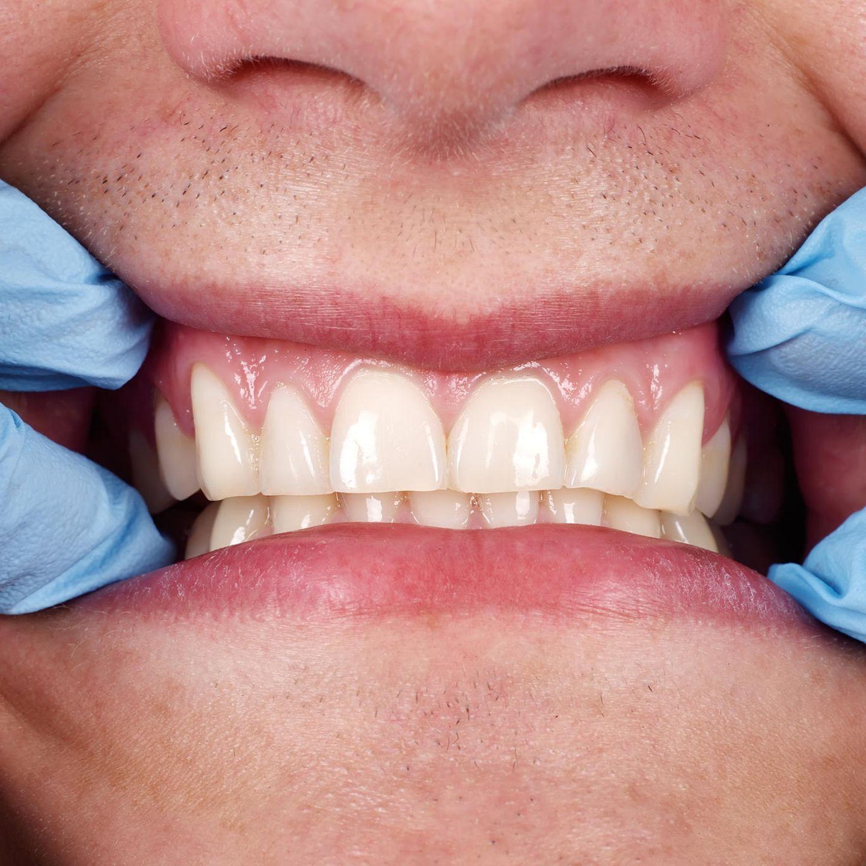 Bis wie es loch lange zuwachsen das gezogen zahn dauert Zahn gezogen
